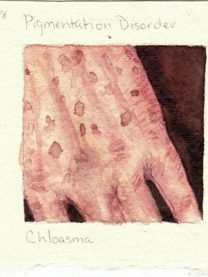 Chloasma
